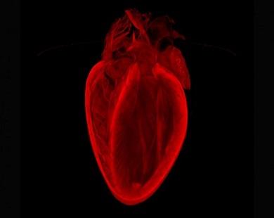 بیماری قلبی؛ مردان در برابر زنان